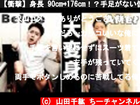 """【衝撃】身長 90cm⇛176cm!?手足がない僕の""""ON""""と""""OFF""""  (c) 山田千紘 ちーチャンネル"""