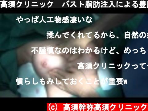 高須クリニック バスト脂肪注入による豊胸手術直後の腫れている状態 寝た状態  (c) 高須幹弥高須クリニック