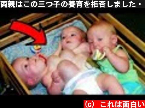 両親はこの三つ子の養育を拒否しました・・・18年後の姿を見てください  (c) これは面白い